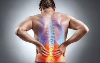 Frühe Physiotherapie hilft langfristig gegen Rückenschmerzen